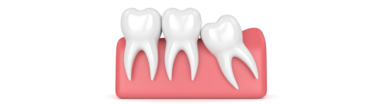 Wisdom Teeth Removal Brownsville | General Dentists San Benito | Harlingen